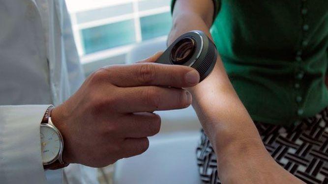 El sistema que detecta el cáncer como un dermatólogo